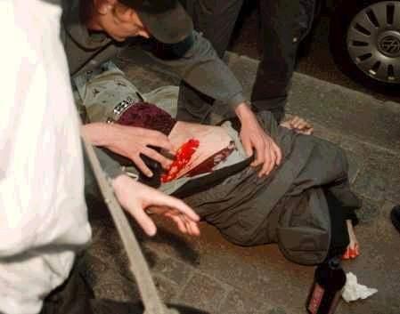 Bleeding protester...
