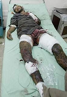 An Iraqi citizen off...